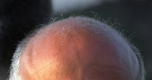 Be Bald And Free Day