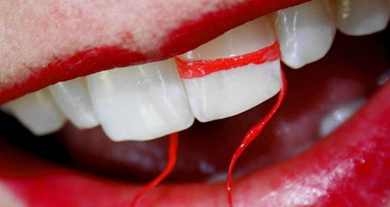 Flossing Day